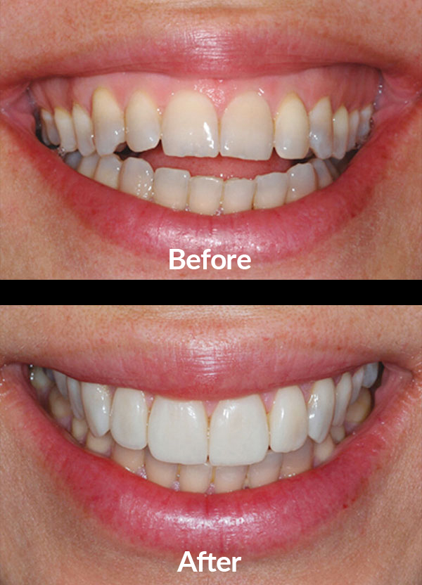 Correcting the bite and improving the color of the teeth