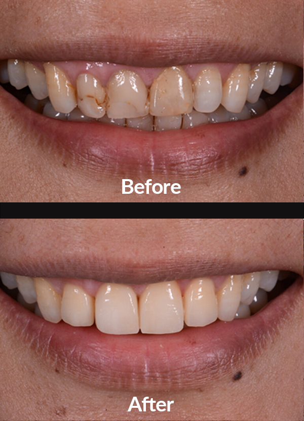 Aesthetic correction of old fillings