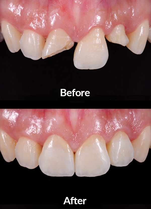 Central teeth reconstruction