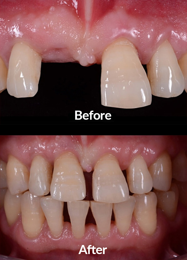 Dental implant and incisive tooth insertion