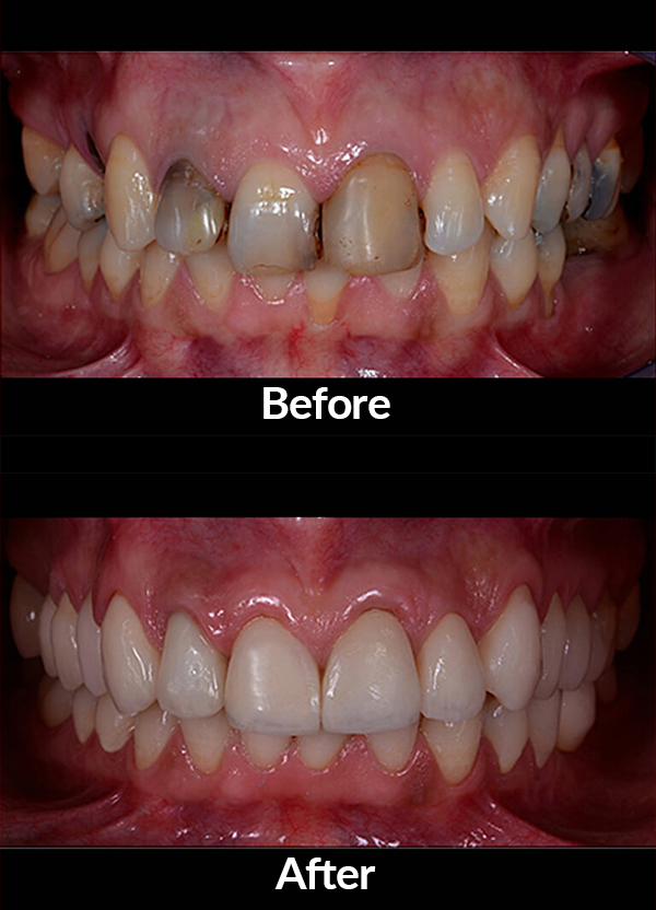 Improve the aesthetics of the patient's smile