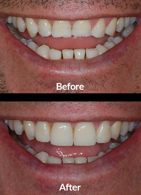 Improving the aesthetic of worn down teeth