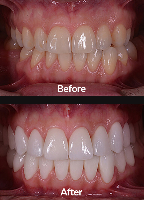 Improving the form and the color of teeth