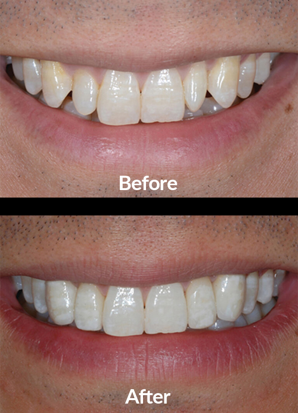 Improving the shape and the color of teeth