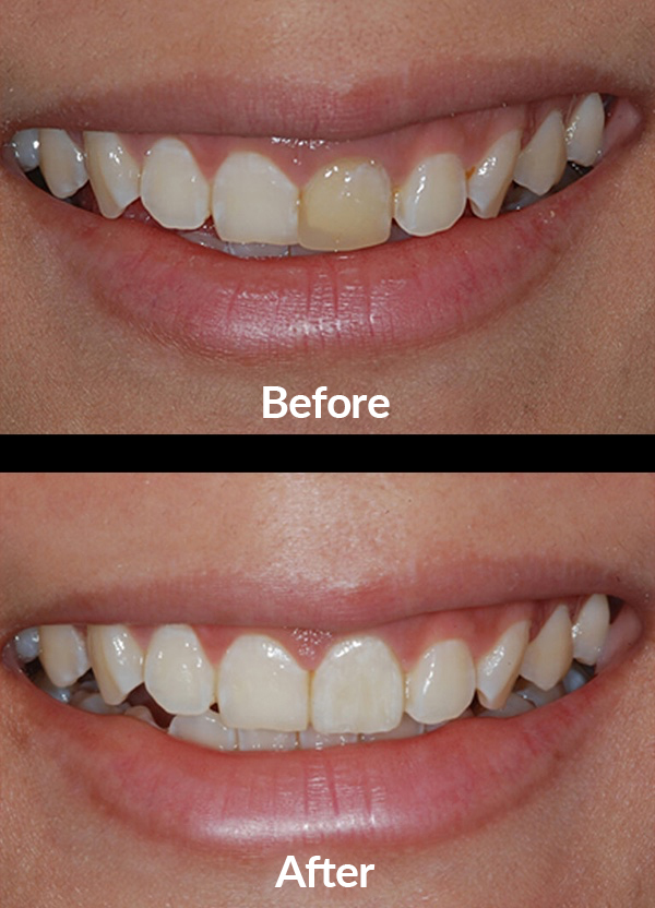 Teeth whitening and the realization of a new crown