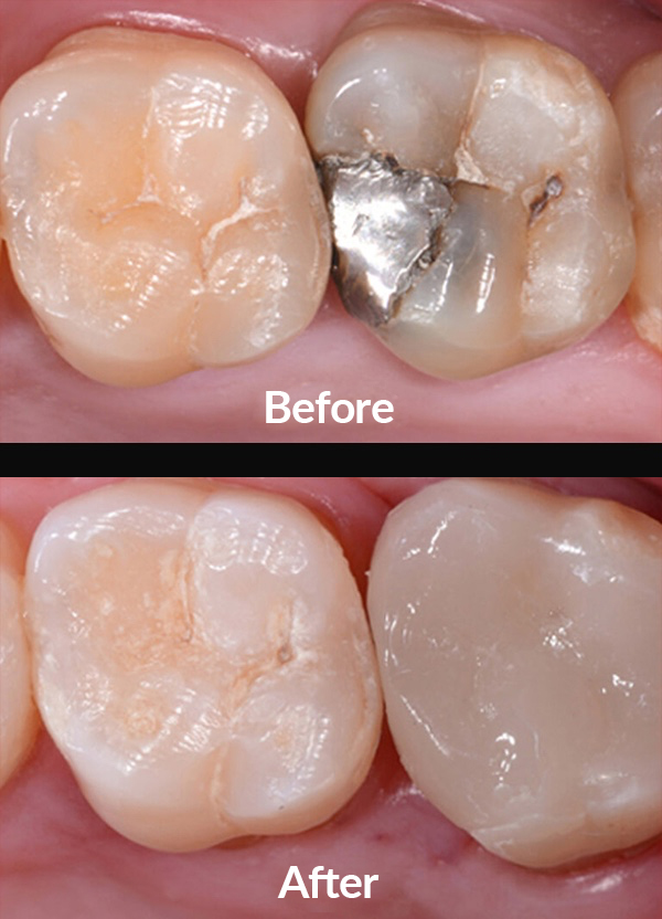 Dental filling replacement with integral ceramic inlay