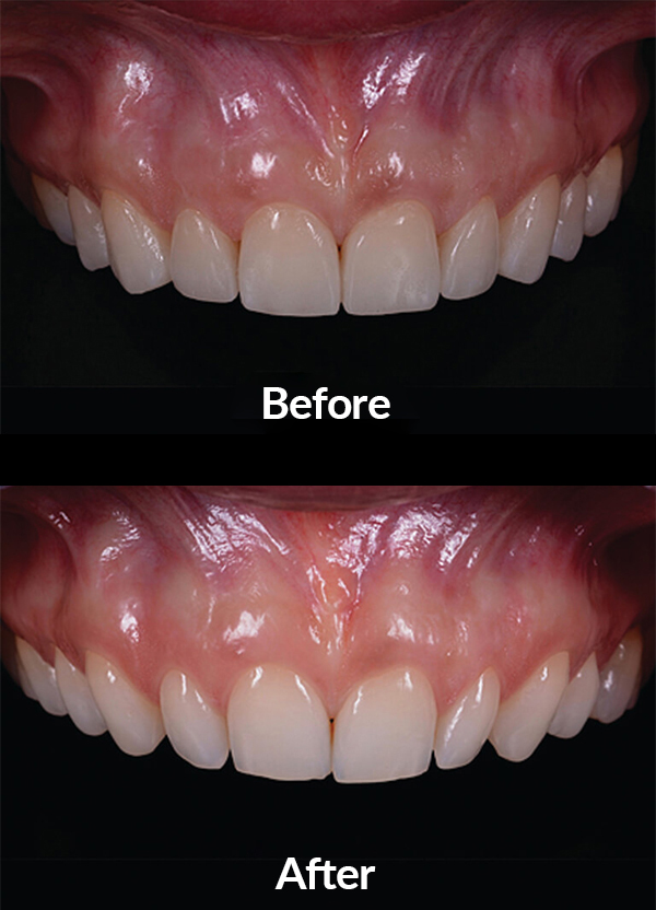 Improving both the form and inclination of teeth