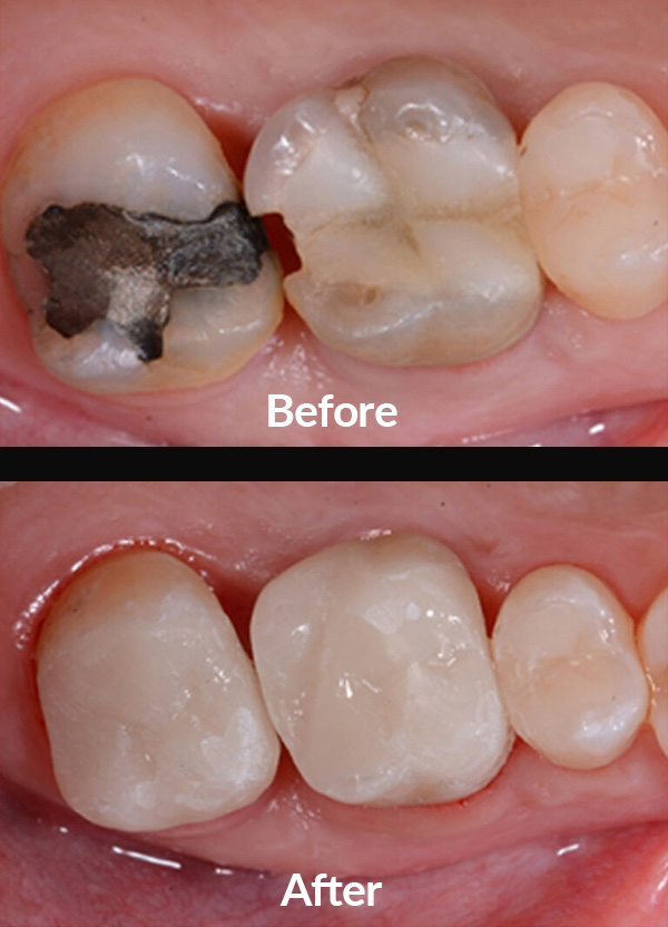 Recover function and aesthetics of molar teeth