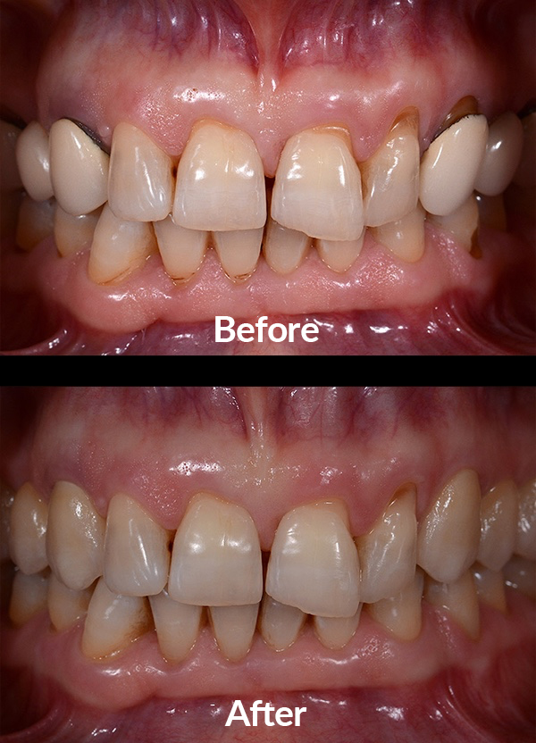 Replacement of ceramic metal crowns with integral ceramic crowns